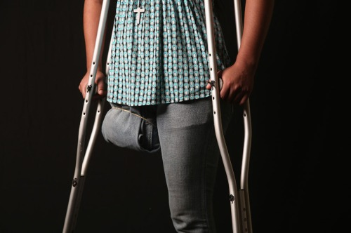 Undocumented Guatemalan immigrant Elvira Lopez, 22, stands on crutches at the Jesus el Buen Pastor shelter in Tapachula, Mexico, on July 31, 2013. She has been convalescing at the shelter for six months after falling under the wheels of a freight train and losing her right leg while en route to the United States. The shelter, which relies entirely on private donations, has helped countless immigrants recover from their wounds while helping arrange for prosthetics. Lopez said she fell asleep 5 days into her journey from Guatemala and was knocked off the train by a tree branch. (John Moore/Getty Images)